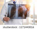 doctor examining chest x ray... | Shutterstock . vector #1171443016