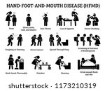 hand foot and mouth disease... | Shutterstock .eps vector #1173210319