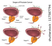 stages of prostate cancer | Shutterstock .eps vector #117587794