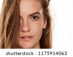 Small photo of Portrait of young beautiful woman with frackles and problematic skin on white backgeound