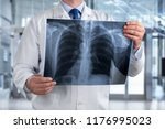 doctor looking chest x ray film ... | Shutterstock . vector #1176995023