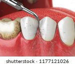 professional teeth cleaning.... | Shutterstock . vector #1177121026