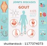 joints diseases. gout symptoms  ... | Shutterstock .eps vector #1177374073
