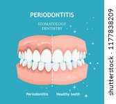 periodontitis vector. recession ... | Shutterstock .eps vector #1177838209