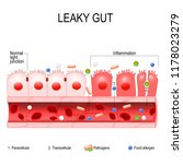 leaky gut. cells on gut lining... | Shutterstock .eps vector #1178023279