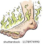 a stinky cartoon foot infected... | Shutterstock .eps vector #1178974990