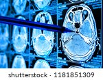 artificial intelligence in... | Shutterstock . vector #1181851309