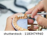 technician dental is working...   Shutterstock . vector #1183474960