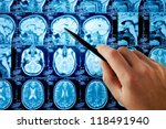 magnetic resonance image  mri ... | Shutterstock . vector #118491940