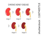 chronic kidney disease  ckd ... | Shutterstock .eps vector #1187405713