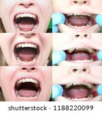 before and after the operation... | Shutterstock . vector #1188220099