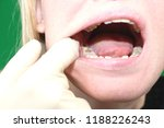 retinished teeth are wisdom... | Shutterstock . vector #1188226243