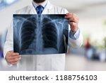 radiologist examining x ray | Shutterstock . vector #1188756103