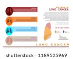 lung cancer infographic... | Shutterstock .eps vector #1189525969