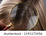 close up of a dandruff in... | Shutterstock . vector #1191172456