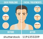 man with a problem skin.... | Shutterstock .eps vector #1191353209
