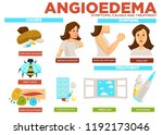 angioedema symptom  causes and... | Shutterstock .eps vector #1192173046
