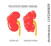 polycystic kidney disease... | Shutterstock .eps vector #1192340839
