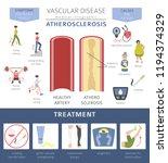 vascular diseases.... | Shutterstock .eps vector #1194374329