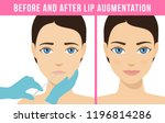 woman makes procedure of beauty ... | Shutterstock .eps vector #1196814286