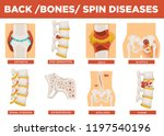 back  bones and human spin... | Shutterstock .eps vector #1197540196