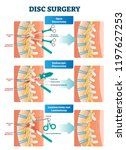 disc surgery vector... | Shutterstock .eps vector #1197627253