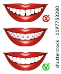 set of smiles. curved teeth ... | Shutterstock .eps vector #1197753280