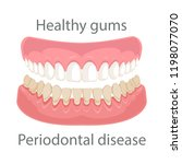 dental concept  gum treatment.... | Shutterstock .eps vector #1198077070