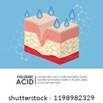 hyaluronic acid filler... | Shutterstock .eps vector #1198982329