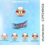 periodontitis formation ... | Shutterstock .eps vector #1199248426