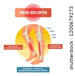 shin splints vector... | Shutterstock .eps vector #1200679273