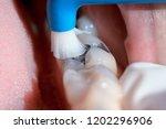 dental hygienist examining a... | Shutterstock . vector #1202296906