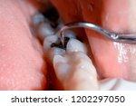 dentist examining a patient's... | Shutterstock . vector #1202297050