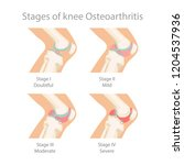 stages of knee osteoarthritis.... | Shutterstock .eps vector #1204537936