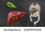 gallstones illustration with... | Shutterstock . vector #1204994320