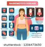 hashimotos thyroiditis vector... | Shutterstock .eps vector #1206473650