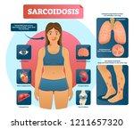 sarcoidosis vector illustration.... | Shutterstock .eps vector #1211657320