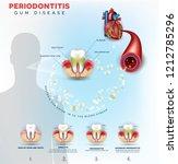 complications of gum disease... | Shutterstock .eps vector #1212785296