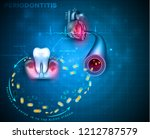 complications of gum disease... | Shutterstock .eps vector #1212787579