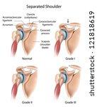 separated shoulder | Shutterstock .eps vector #121818619