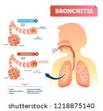 bronchitis vector illustration. ... | Shutterstock .eps vector #1218875140