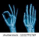 X Ray Hand In Blue Tone  Wrist...