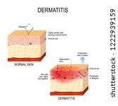atopic dermatitis  atopic... | Shutterstock . vector #1222939159