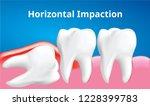 wisdom tooth   horizontal... | Shutterstock .eps vector #1228399783