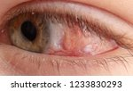 red eye on face after surgery.... | Shutterstock . vector #1233830293