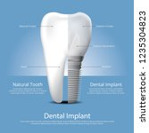 human teeth and dental implant... | Shutterstock .eps vector #1235304823