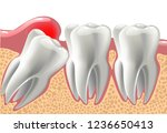 realistic 3d teeth  and wisdom... | Shutterstock .eps vector #1236650413