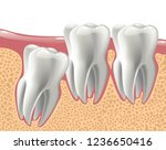realistic 3d teeth  and wisdom... | Shutterstock .eps vector #1236650416
