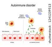 autoimmune disorders. for... | Shutterstock .eps vector #1241239513