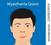 myasthenia gravis  mg  disease... | Shutterstock .eps vector #1243815919